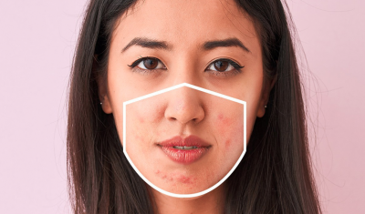 Woman with Mask Acne