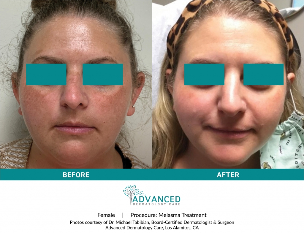Before & After Melasma Treatment