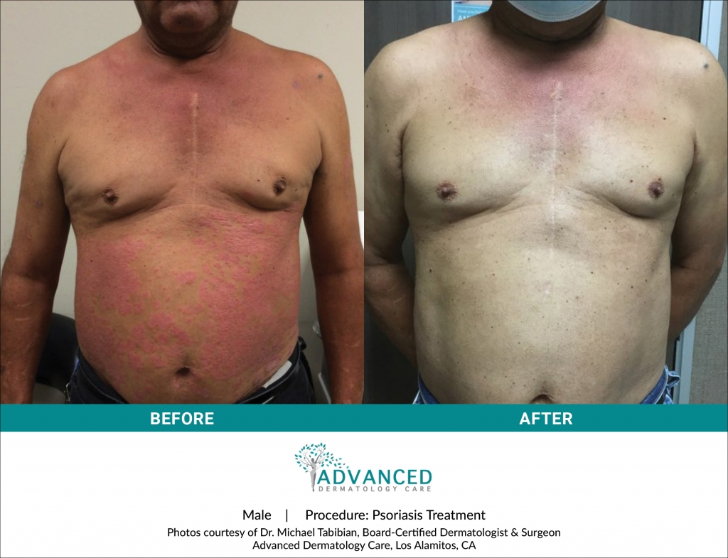 Before & After Psoriasis Treatment