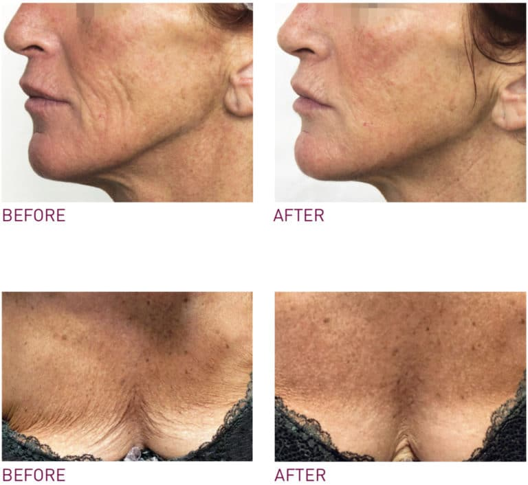 PRX-T33 Skin Rejuvenation Before & After