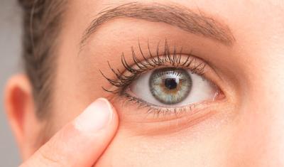 Woman touching Under Eye Wrinkles