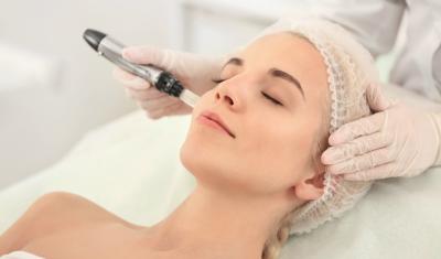 Woman Getting Microneedling Treatment