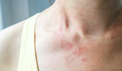 Red Bumps on Neck