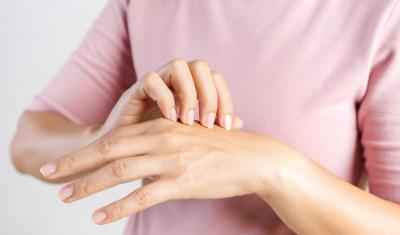 Dry Peeling Hands
